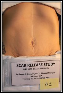 Scar Release Therapy